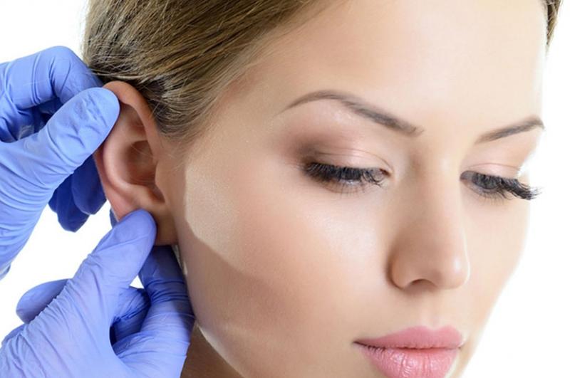 Otoplastia – Cirurgia na orelha