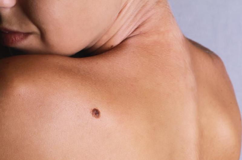 Tumores de pele