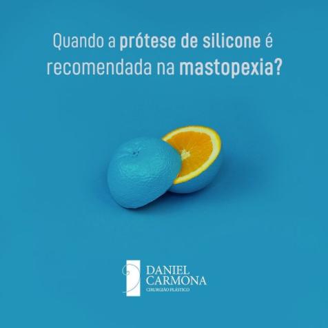 Quando a prótese de silicone é recomendada na mastopexia?